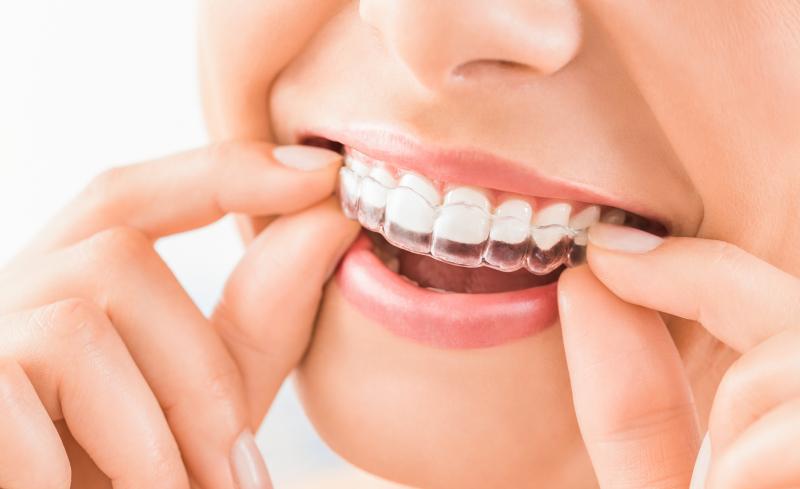 orthodontie_lausanne